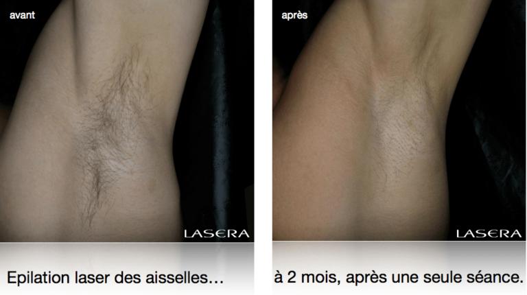 Epilation laser des aisselles, évolution à 2 mois après une seule séance.