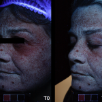 Universkin before after 3