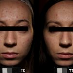Universkin before after 2