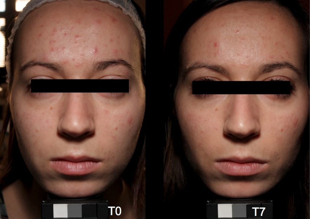 Lasera Universkin before after 2