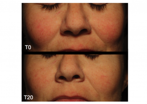 Universkin before after 1