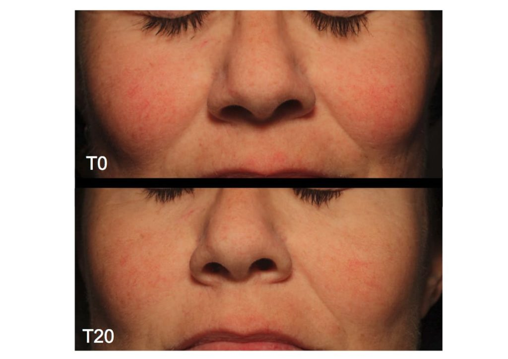 Lasera Universkin before after 1