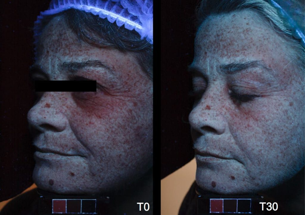 Lasera Universkin before after 3