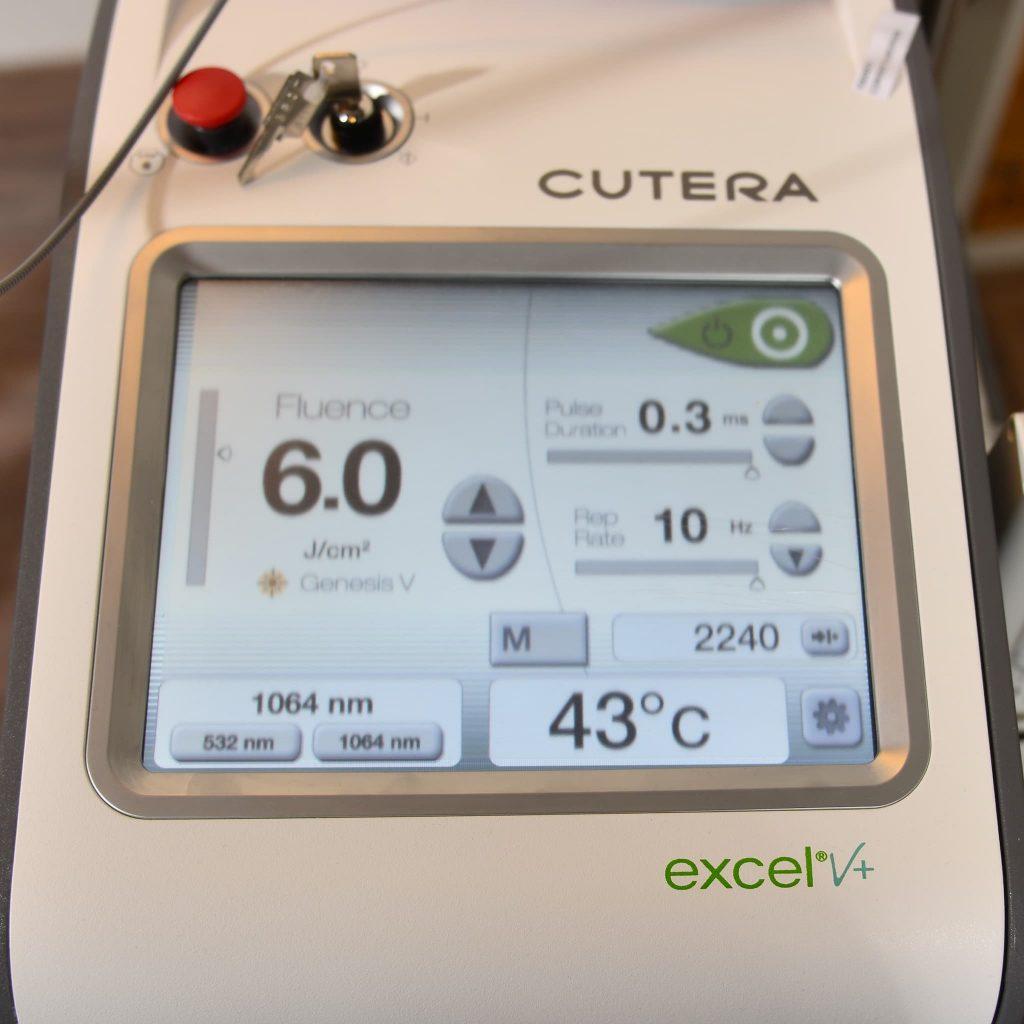 Lasera photo janvier 2020 Laser Genesis Excel V Plus