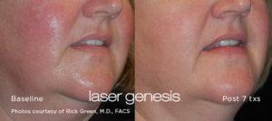 Laser Genesis 4