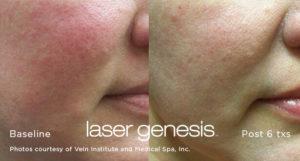 Laser Genesis 5