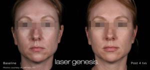 Laser Genesis 6