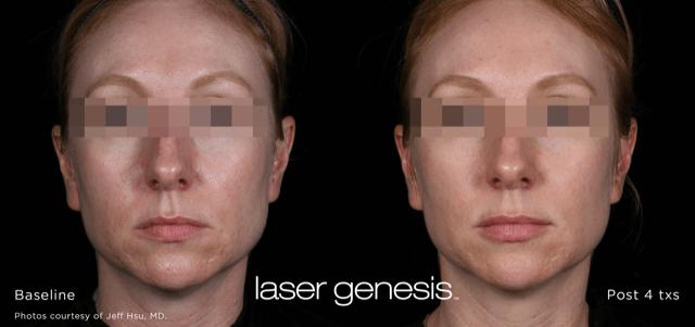 Lasera.ch, photo Laser Genesis 6