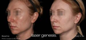 Laser Genesis 7