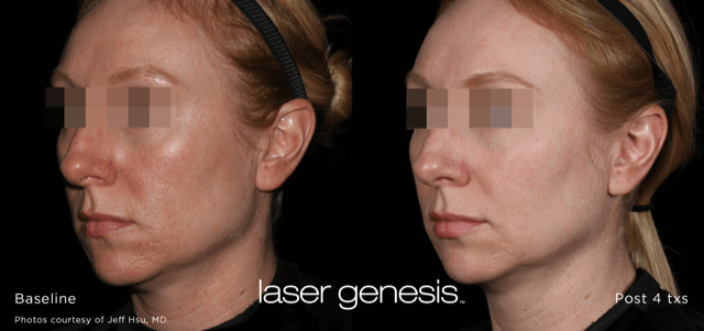 Lasera.ch, photo Laser Genesis 7