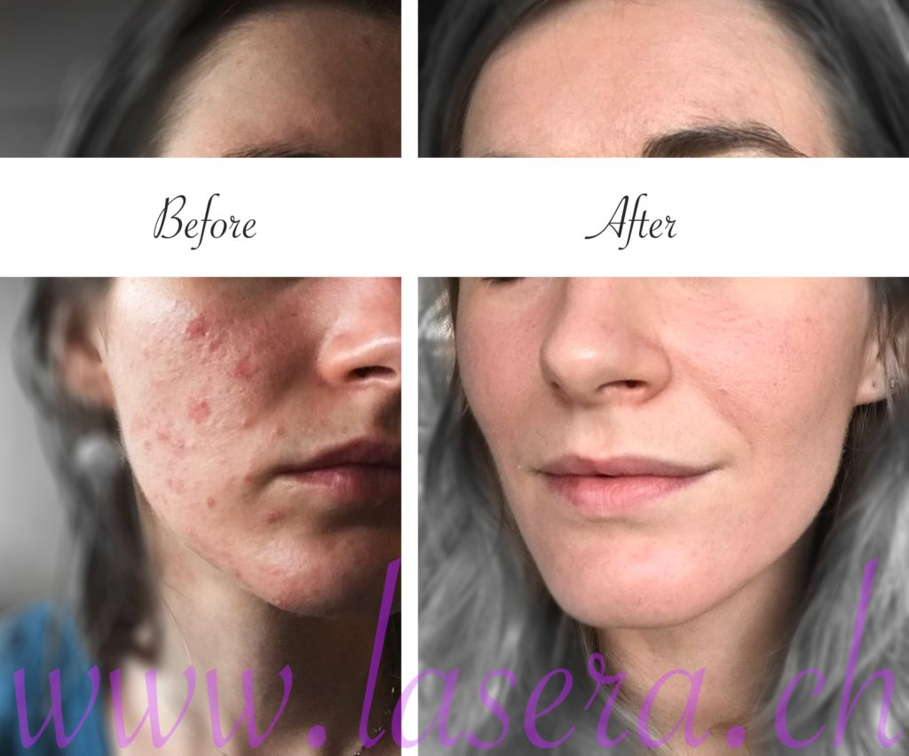 Lasera acne evolution treatment Universkin Laser Genesis KTP Fraxel before and after
