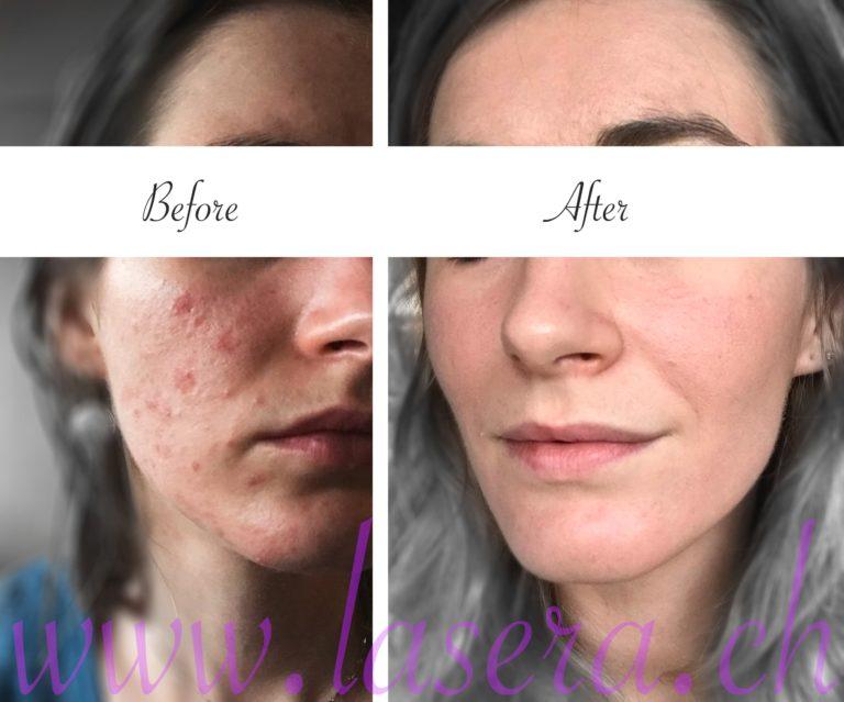 Lasera acne evolution treatment Universkin Laser Genesis KTP Fraxel before and after