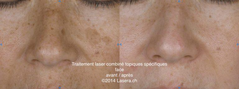 Traitement laser combiné topiques spécifiques - avant / après - face