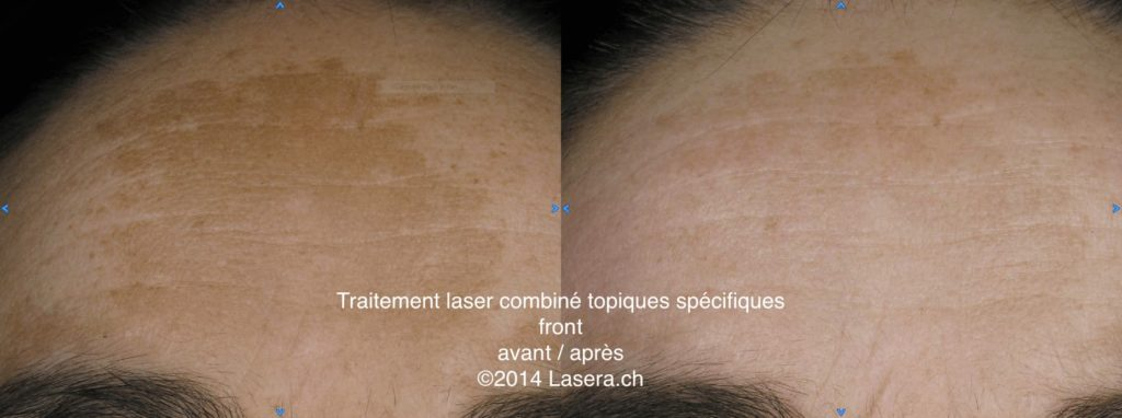 Traitement laser combiné topiques spécifiques - avant / après - front