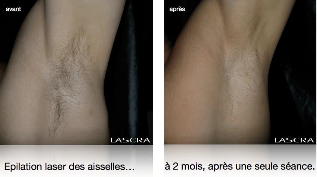 Image avant / après Epilation laser des aisselles, évolution à 2 mois après une seule séance.