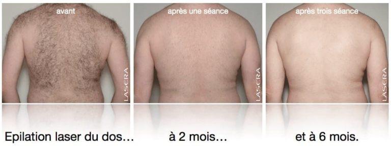 Image avant / après Epilation laser du dos, évolution à 2 et 6 mois, après une et trois séances.