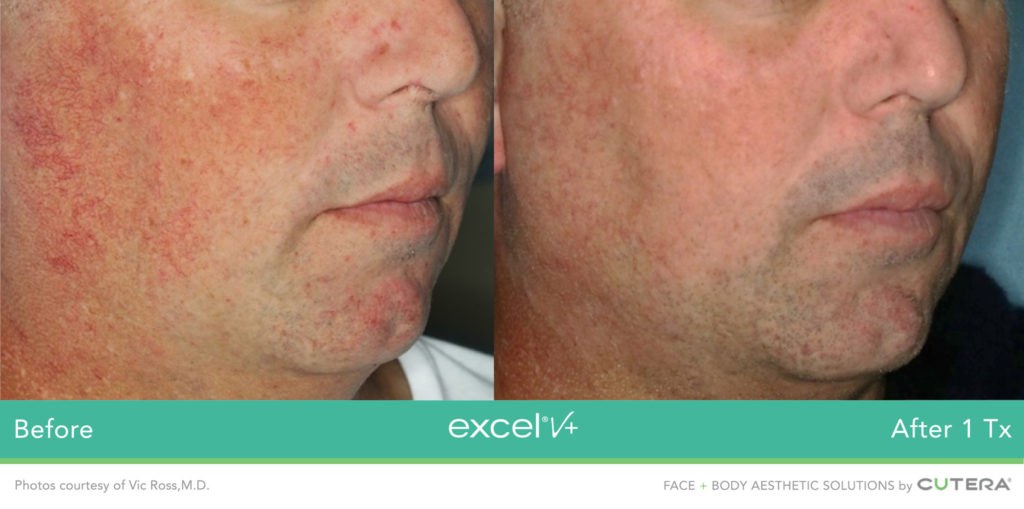 Cutera LaserGenesis, Green Genesis Excel V+ Before / After 1 Txs @ 2020 Lasera.ch