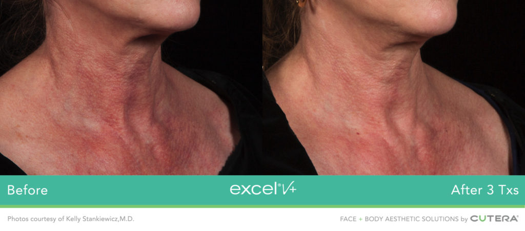 Cutera LaserGenesis, Green Genesis Excel V+ Before / After 3 Txs @ 2020 Lasera.ch