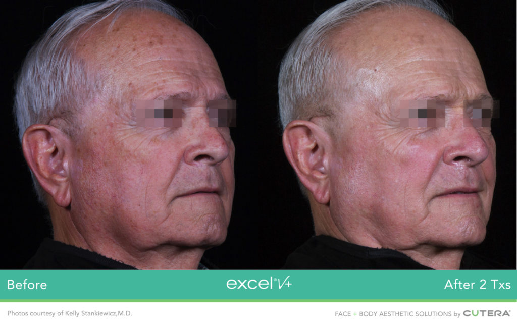 Cutera LaserGenesis, Green Genesis Excel V+ Before / After 2 Txs @ 2020 Lasera.ch