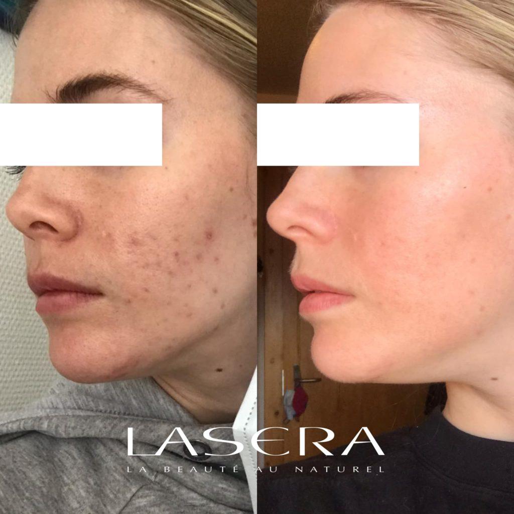 Lasera avant/apres, patients 31 ans, acné leger, laser Excel V Plus, laserGenesis, GreenGenesis, Fraxel Dual