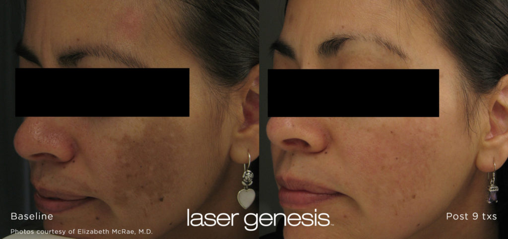 Cutera LaserGenesis, Before / After Post 9 Txs @ 2020 Lasera.ch