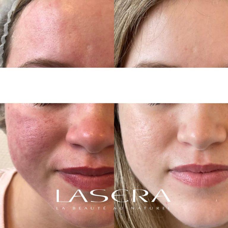 lasera acné avant/apres traitement laserGenesis + Fraxel